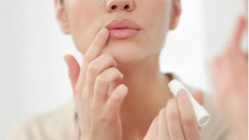 Herpes labiale: come avviene il contagio?